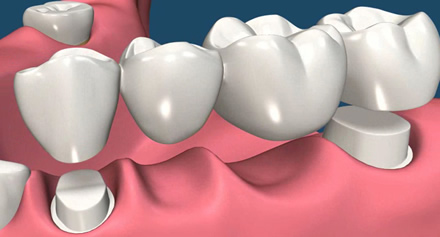 Dental bridge, teeth treatments